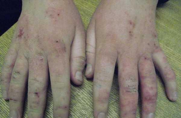 Что такое неуточненный контактный дерматит