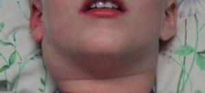 При ангине болит лимфоузел на шее