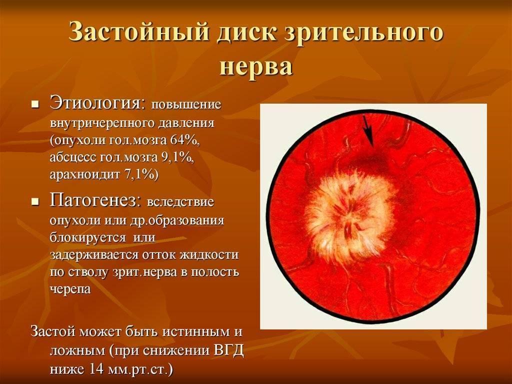 отек зрительного нерва