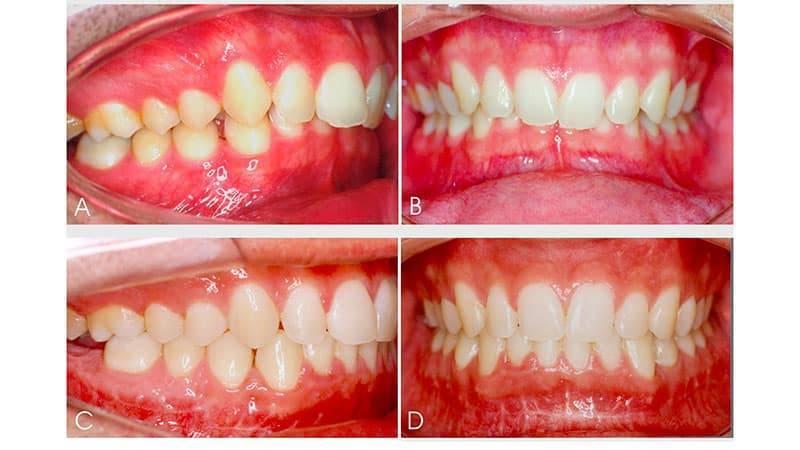 Глубокий прикус: до и после лечения, что это такое, фото, как исправляют у взрослых, причины у ребенка, последствия перекрестного