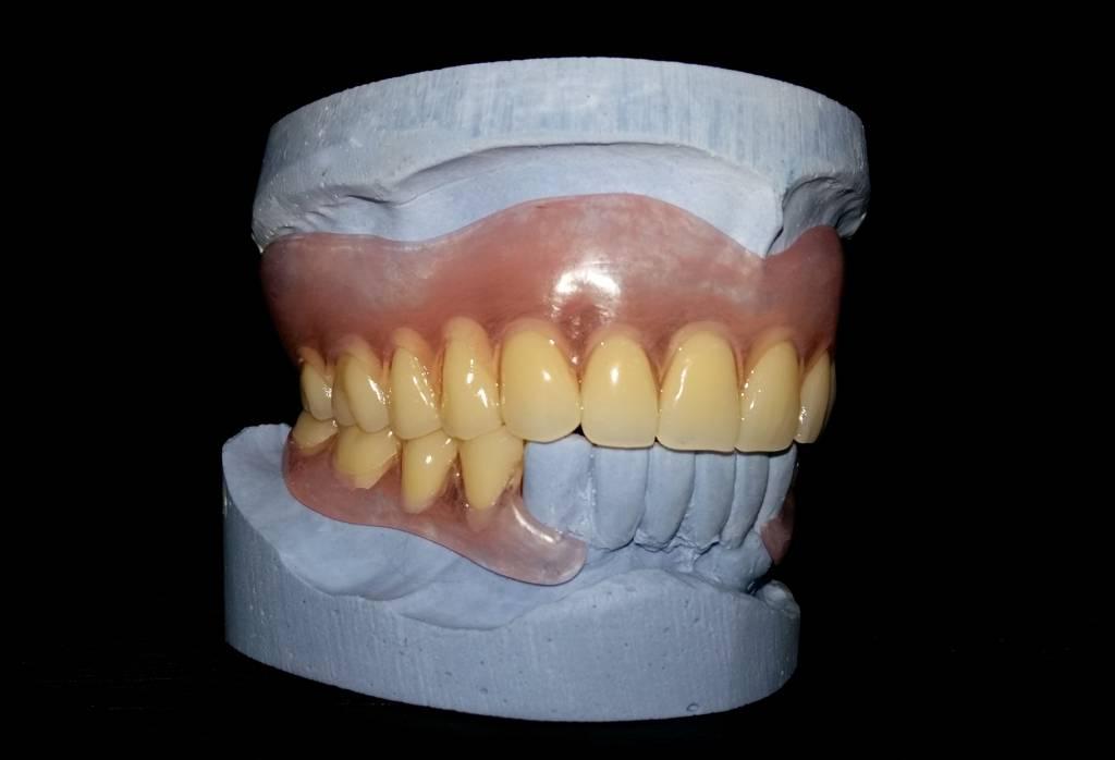 нейлоновый протез на один зуб