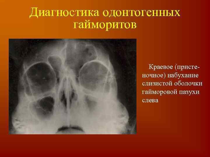 Причины утолщений слизистых оболочек гайморовых пазух