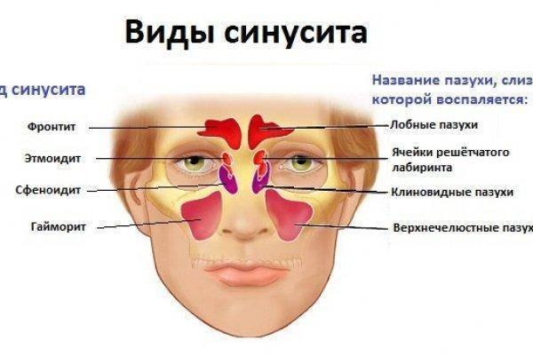 Лечение левостороннего фронтита