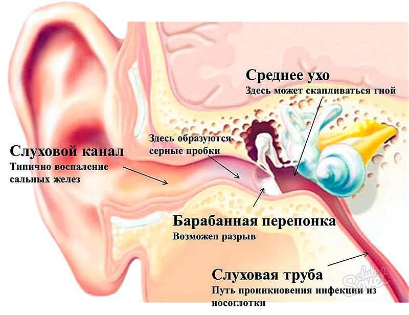 У ребенка при глотании болит в ухе