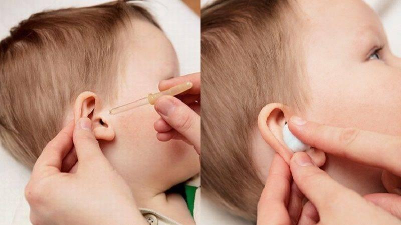 как правильно капать уши
