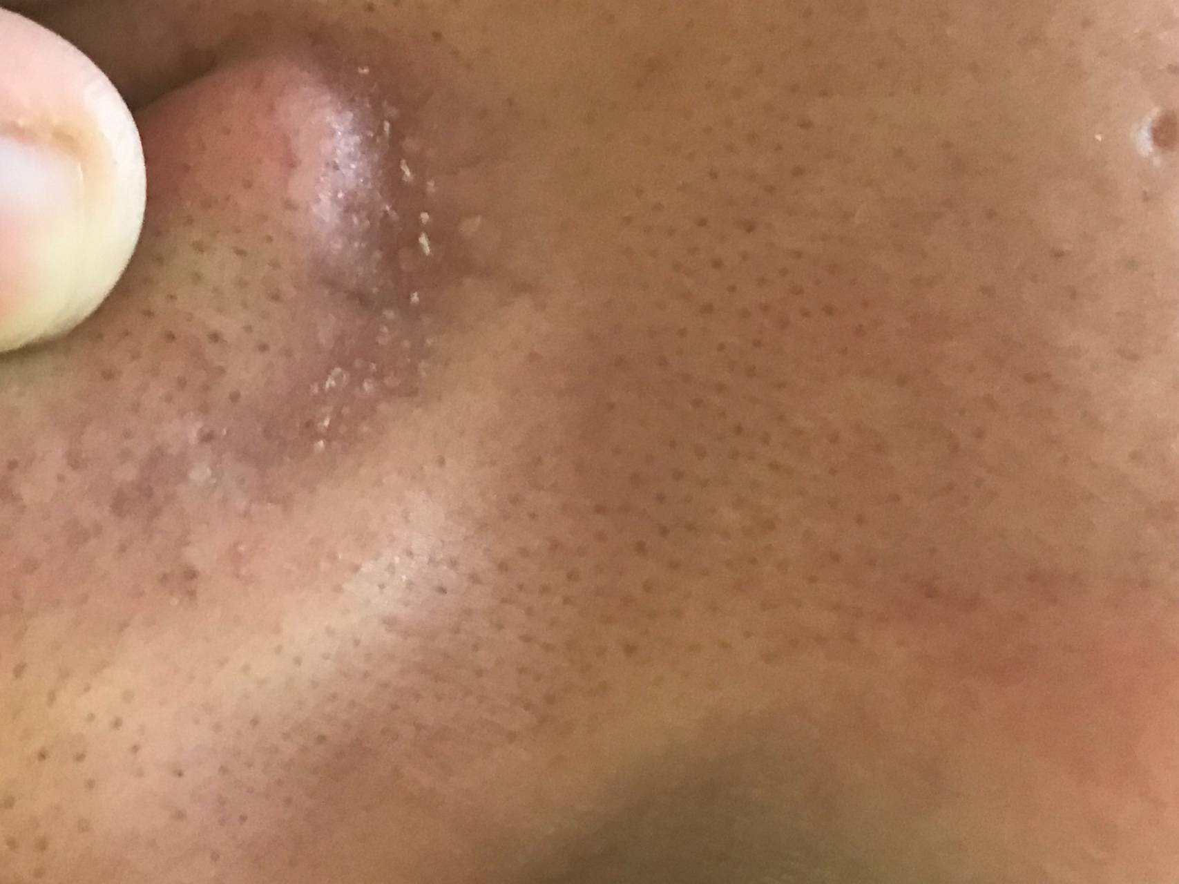 Фурункул носа, внутри и снаружи: почему появляется, стадии и проявления, как лечить