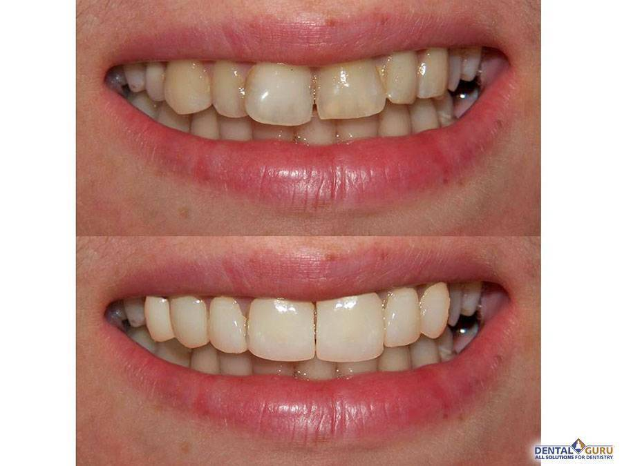 Кривые зубы у детей и взрослых: причины, методы исправления