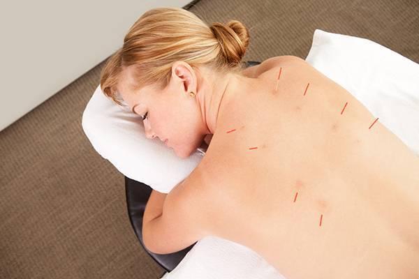 Рефлексотерапия в медицине