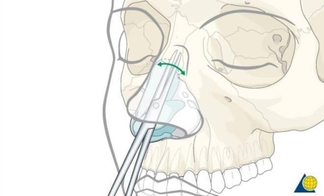 Перелом носа: основные симптомы и признаки травмы, современные подходы к лечению