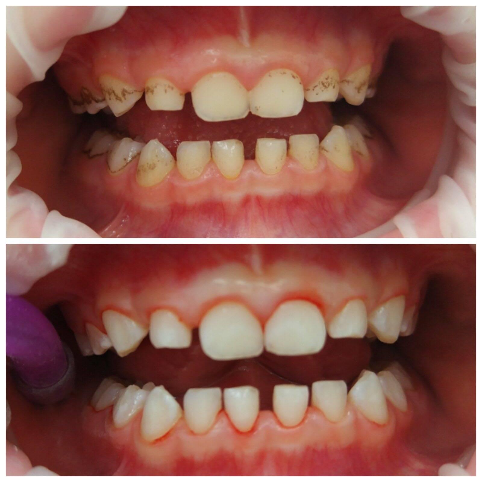 Сроки прорезывания молочных зубов. особенности молочного прикуса.