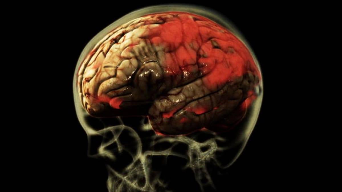 Глисты и паразиты в головном мозге человека