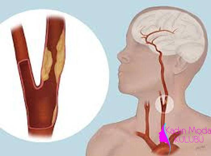Операция по удалению холестериновых бляшек на сонной артерии при атеросклерозе