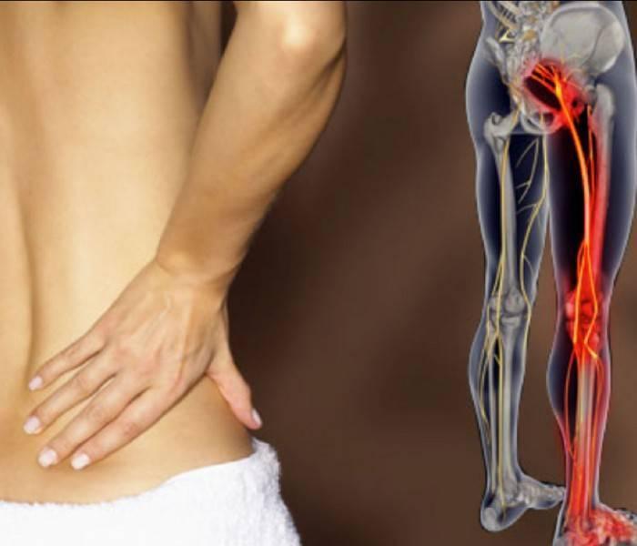 Снять боль при невралгии поможет фитотерапия