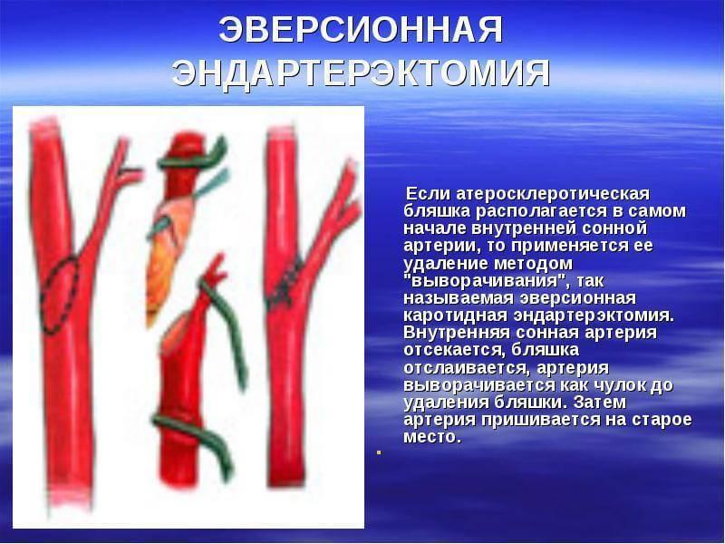 каротидная эндартерэктомия этапы операции