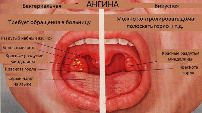Лекарства от ангины