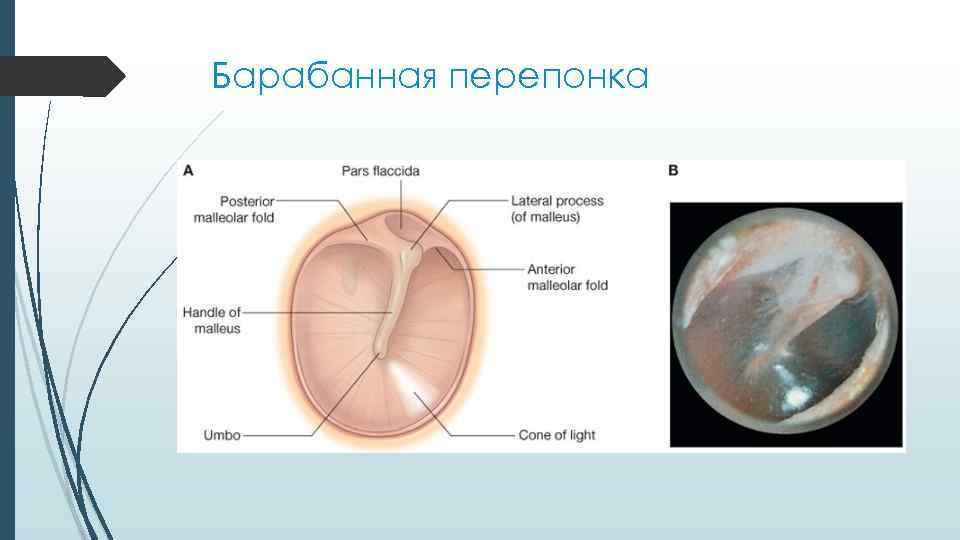 Перфорация (разрыв) барабанной перепонки. лопнула барабанная перепонка - причины, симптомы, признаки, диагностика и лечение патологии