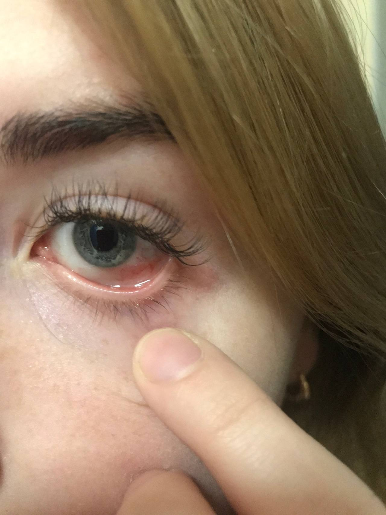 ожог сетчатки глаза симптомы