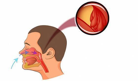 Назофарингит: причины, течение, диагностика, как лечить