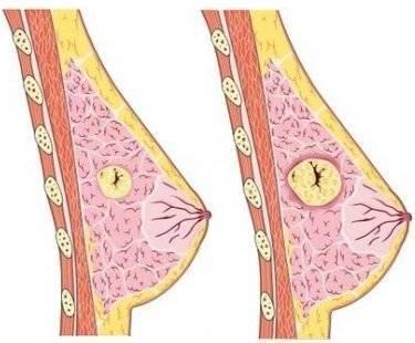 фиброма молочной железы удаление