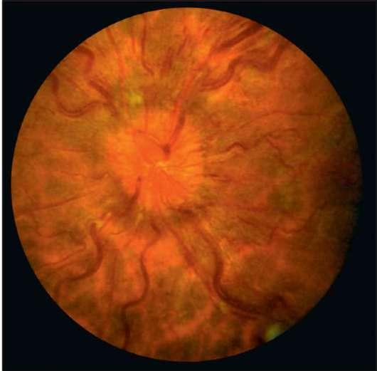 Отёк диска зрительного нерва