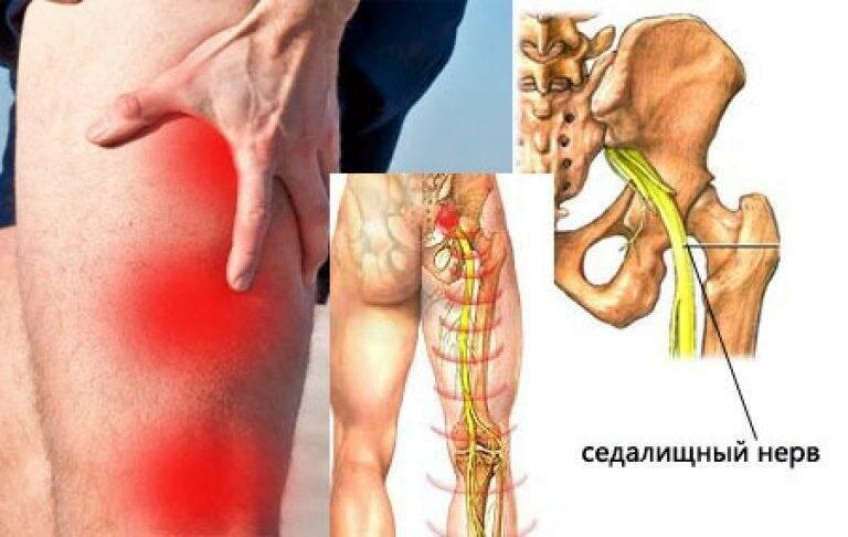 Симптомы и лечение невралгии поясничного отдела