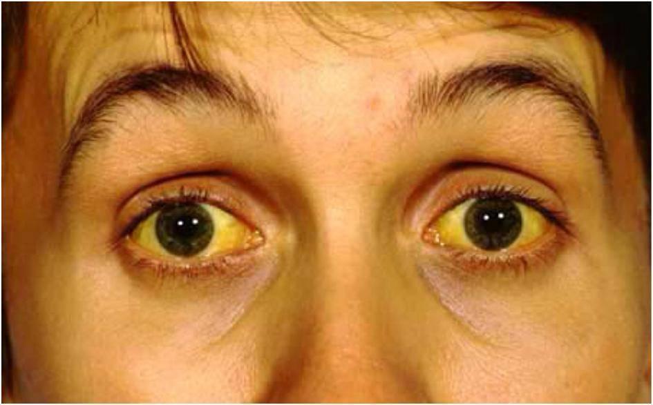 желтые белки глаз у новорожденных