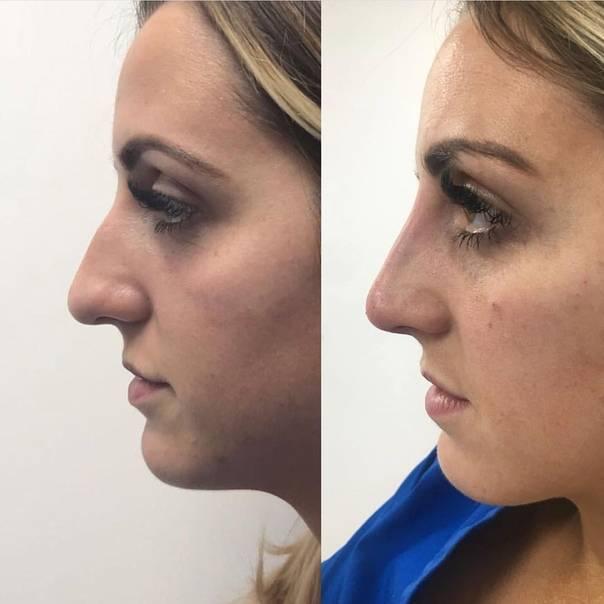 синяк на носу