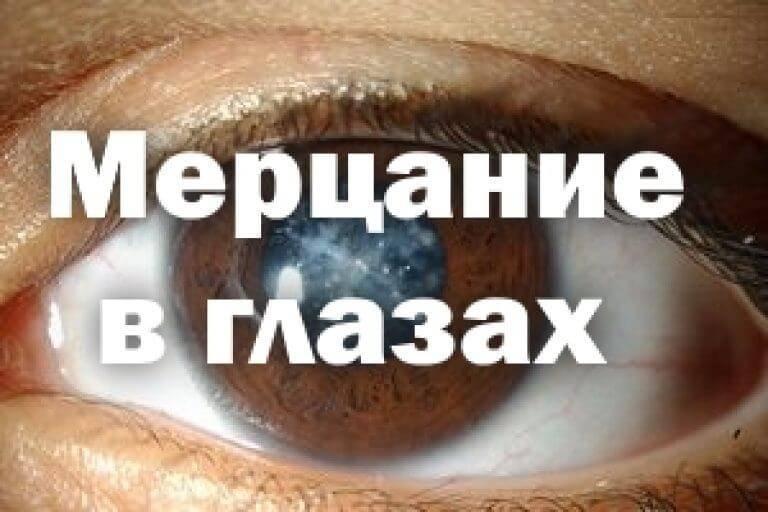 блики в глазах причины