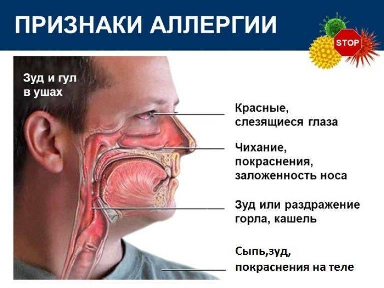 Как распознать аллергический кашель у ребенка или нет