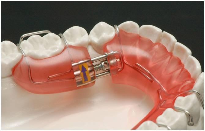 пластинки для выравнивания зубов