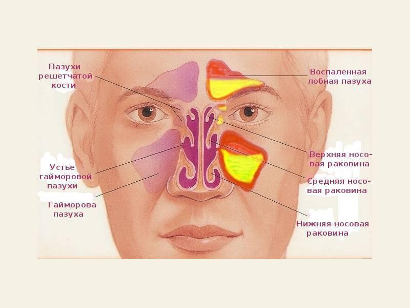 околоносовые пазухи анатомия