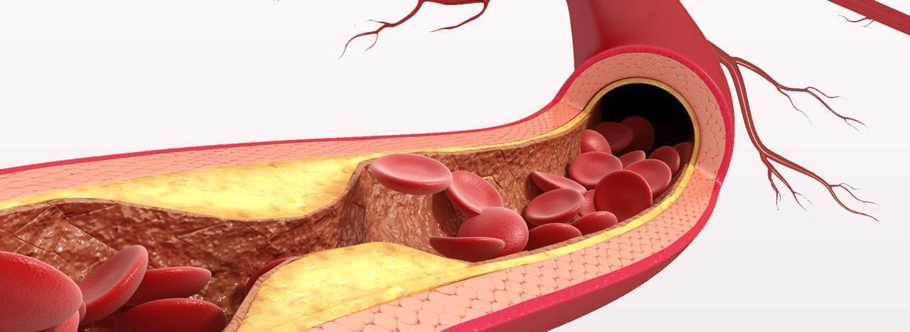 Атеросклеротические бляшки: как от них избавиться и какой прогноз на жизнь?