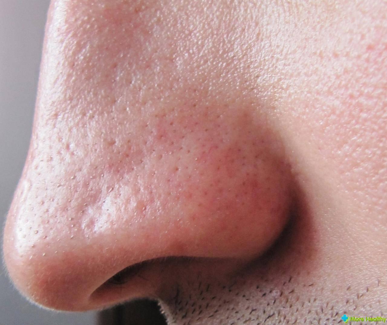 грибок в носу