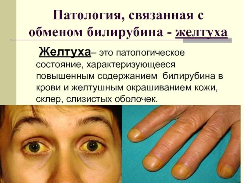 Желтуха. причины, виды и симптомы. лечение желтухи
