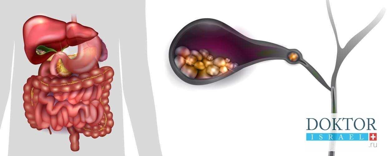 симптомы рака желчного пузыря
