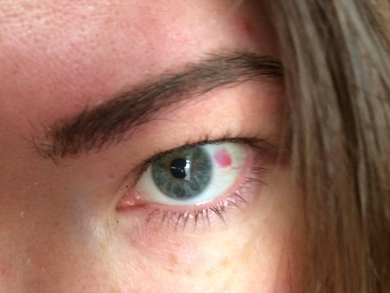 красная точка на глазу