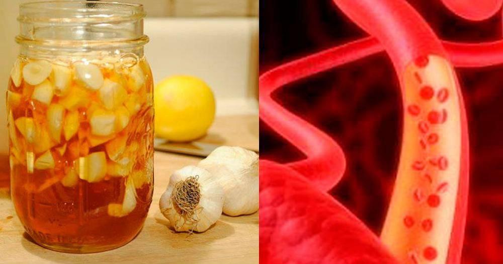 Чем натуральным чистить сосуды от холестериновых бляшек в домашних условиях
