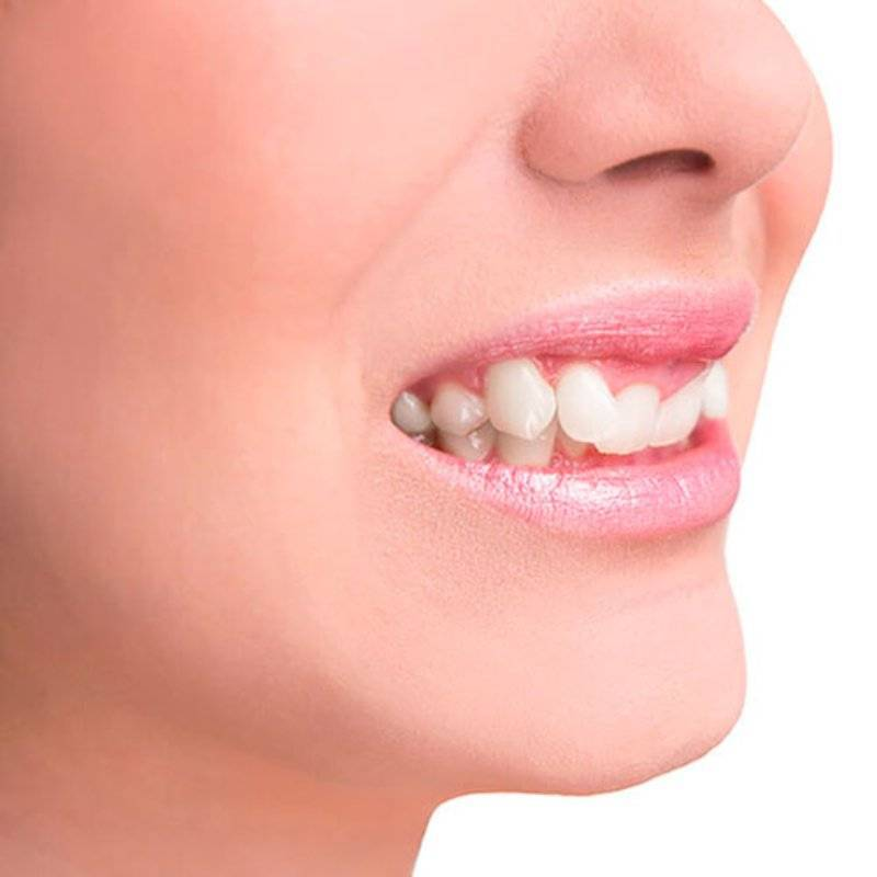 Окклюзия зубов - что это? какие бывают прикусы зубов - много зубов
