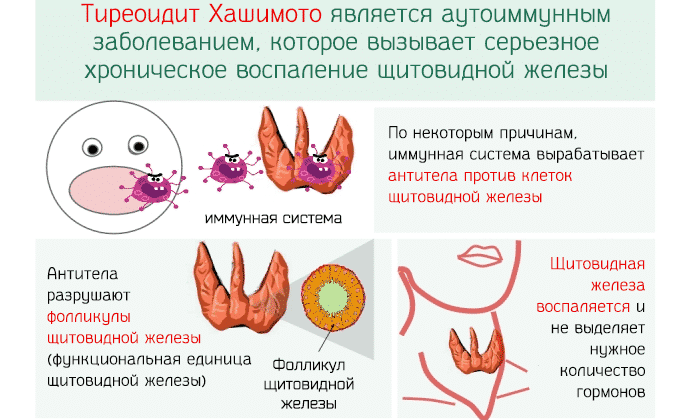 Первые признаки и опасность воспаления щитовидной железы