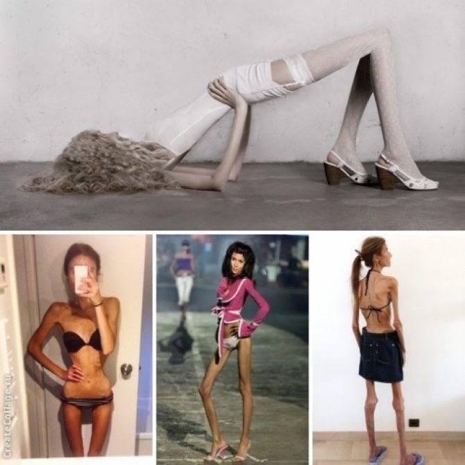 Анорексия: что это такое, причины, симптомы, лечение в домашних условиях