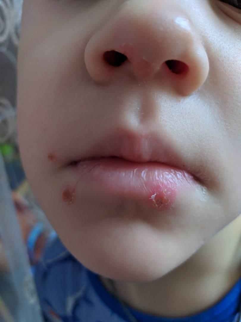 Причины появления герпеса в носу: симптомы и лечение