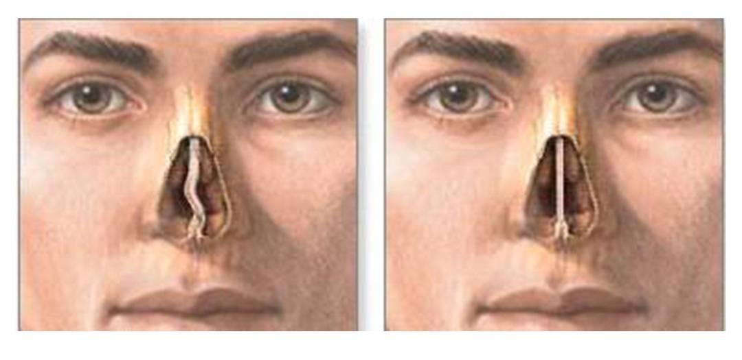 Искривление носовой перегородки – симптомы, признаки, диагностика, причины. лечение искривления: показания, противопоказания к операции