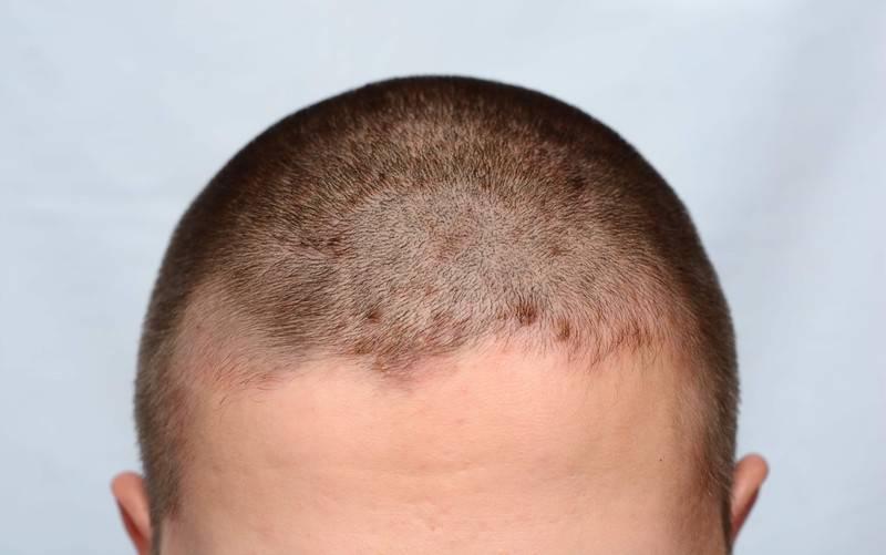 7 шампуней при себорее – для лечения дерматита кожи головы – лучшие