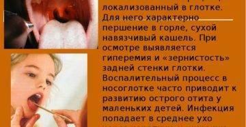 Гонококковый фарингит