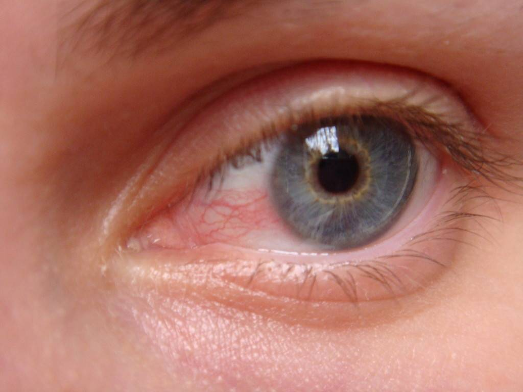 заболевание глаз кератит