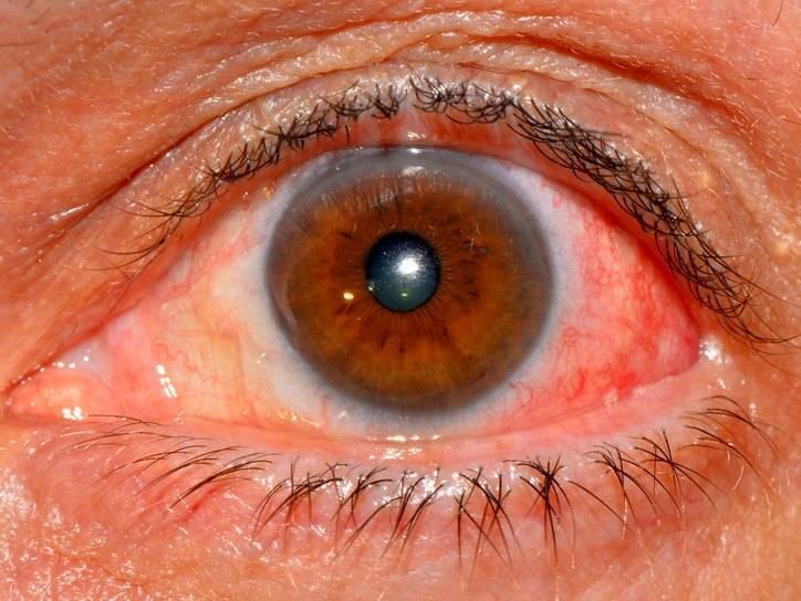 болезни роговицы глаз у человека