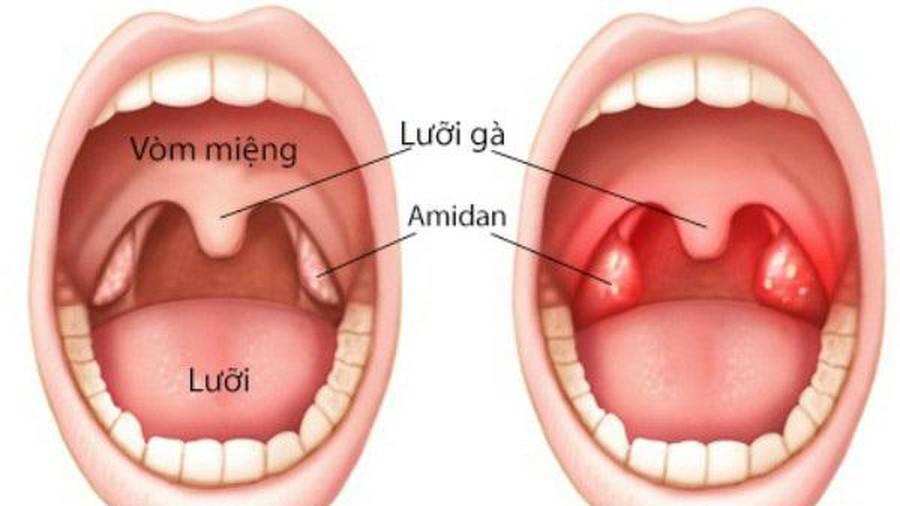 Миндалины в горле: воспаление у взрослых, лечение гланд, причины и симптомы, развитие заболевания, клиническая картина, особенности лечения