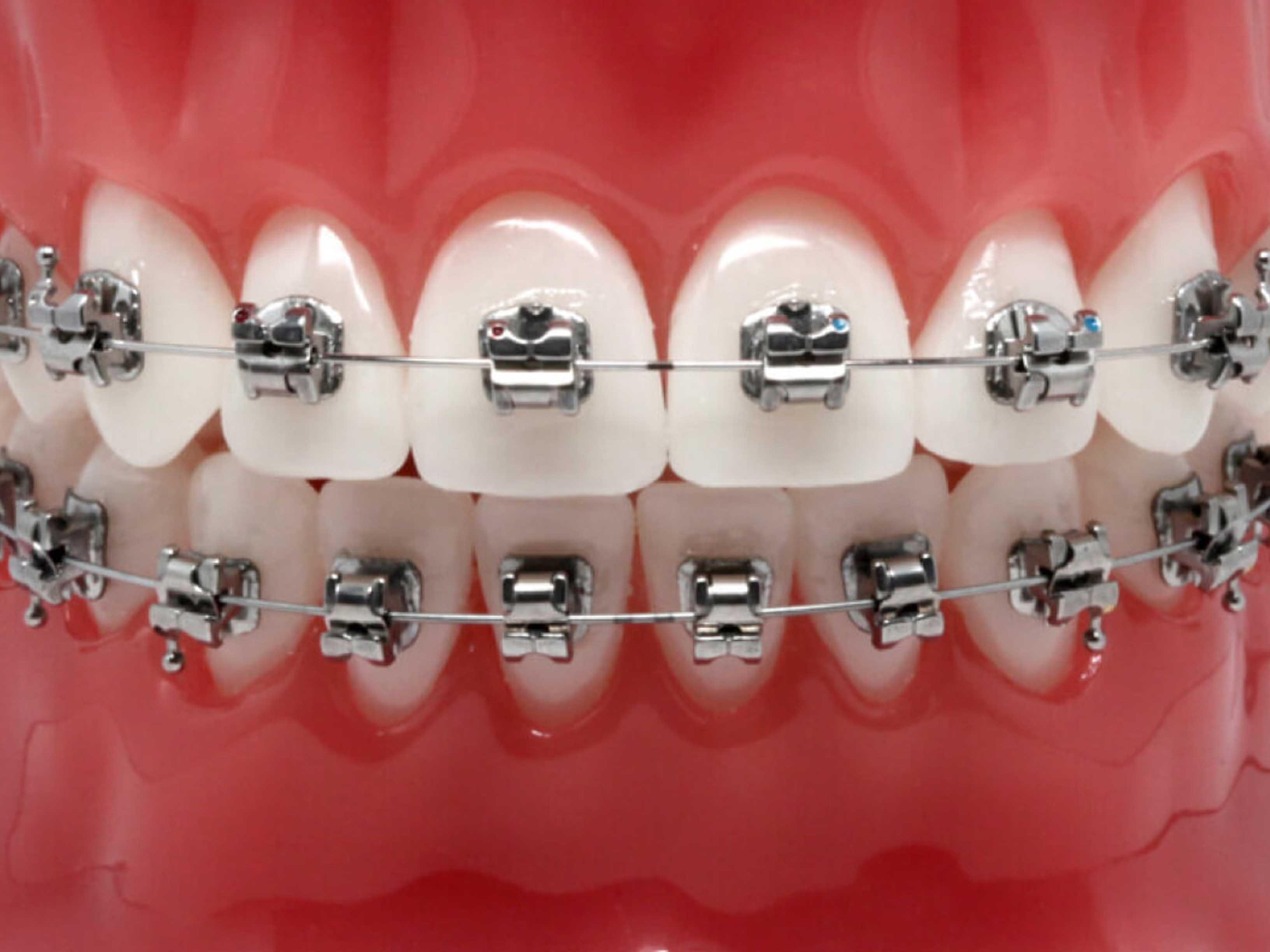 Активация брекет-системы — это коррекция зубных конструкций