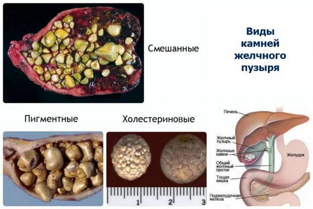 Лечение желчнокаменной болезни без операции