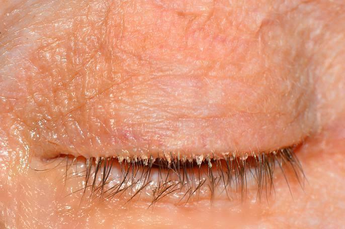 Демодекозный блефарит: симптомы и лечение